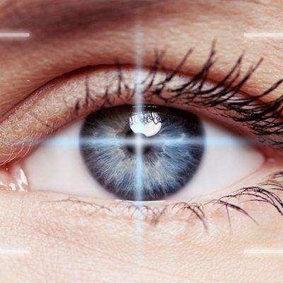 ¿Cómo es la operación de miopía?