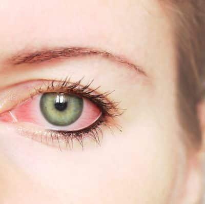 Principais causas do olho vermelho