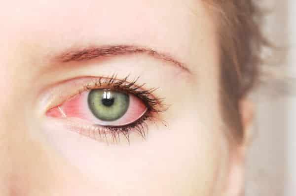 Principales causas del ojo rojo
