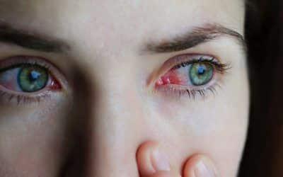 ¿Cómo se contagia la conjuntivitis?