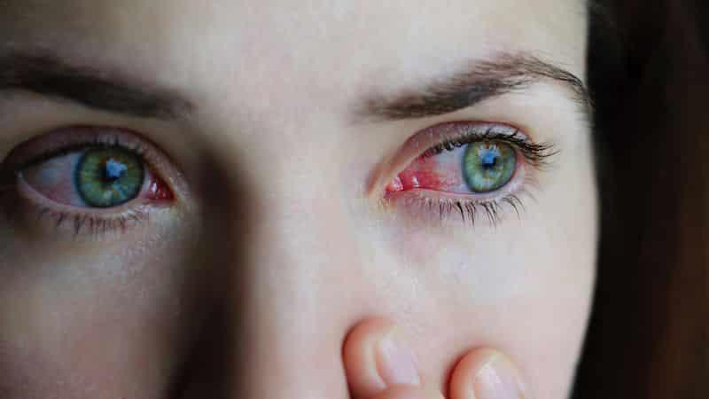 conjuntivitis contagio