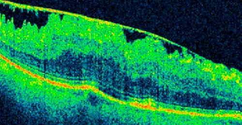 diagnostico membrana epirretiniana oct