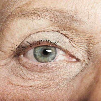 Tipos de lentes intra-oculares multifocais