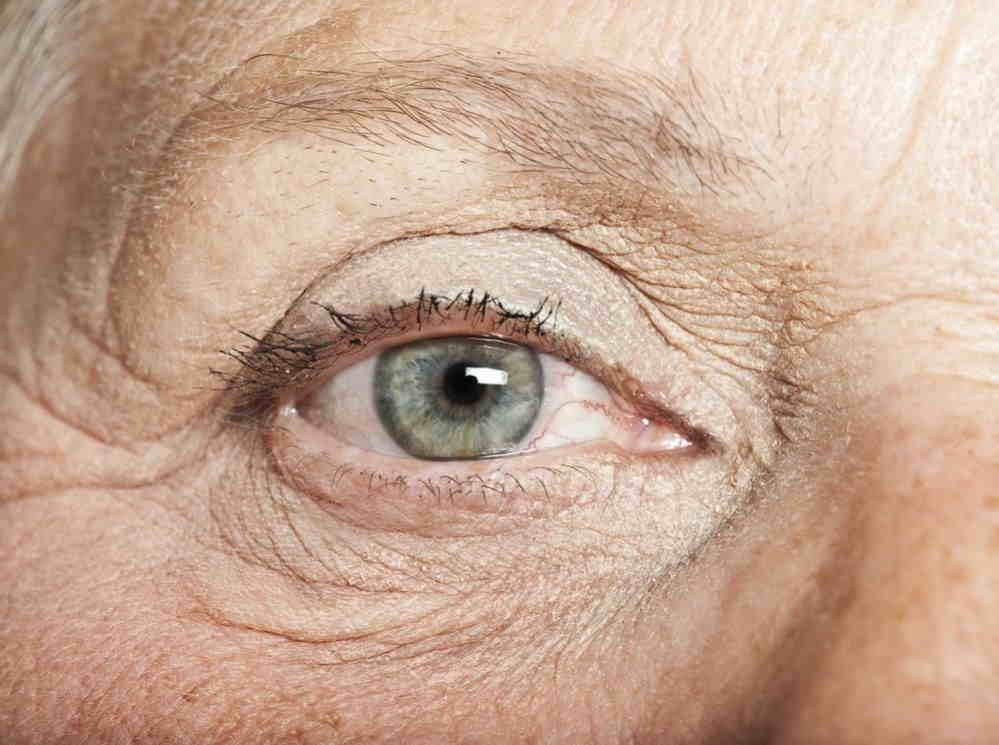 Tipos de lentes intraoculares multifocales