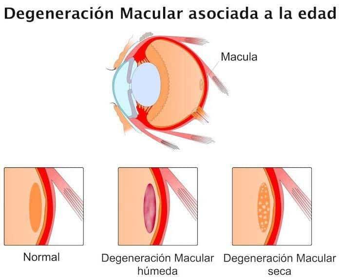 degeneracion macular