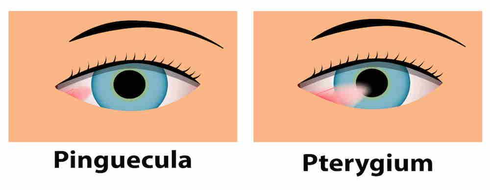 Diferenca entre pinguécula y pterigión