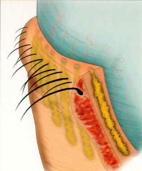 tratamento ocular seco