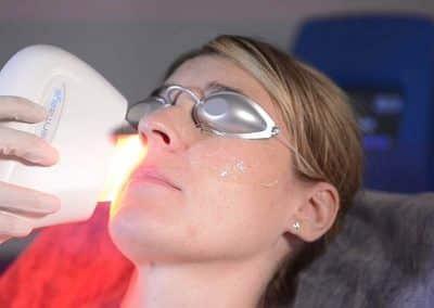 Tratamiento del Ojo Seco