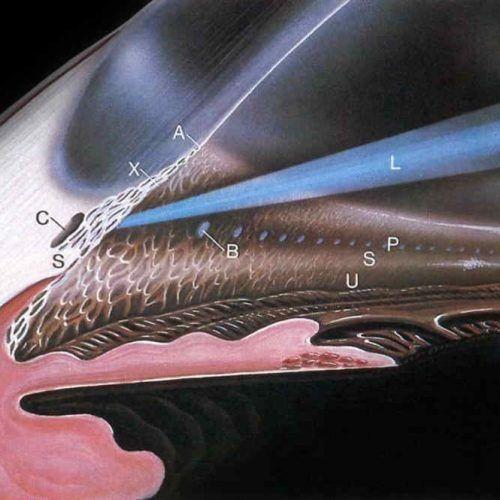 Glaucoma: Clínica, diagnóstico y tratamiento