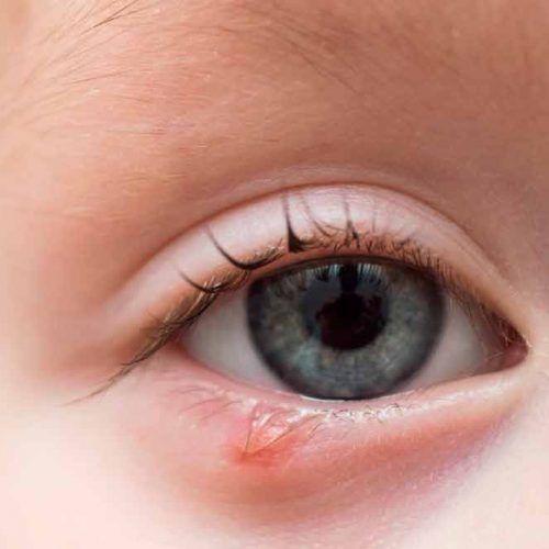 Orzuelo en niños, causas y tratamiento