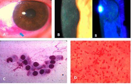 Estado del epitelio córneo-conjuntival para ojo seco