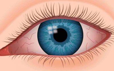 causas ojo seco