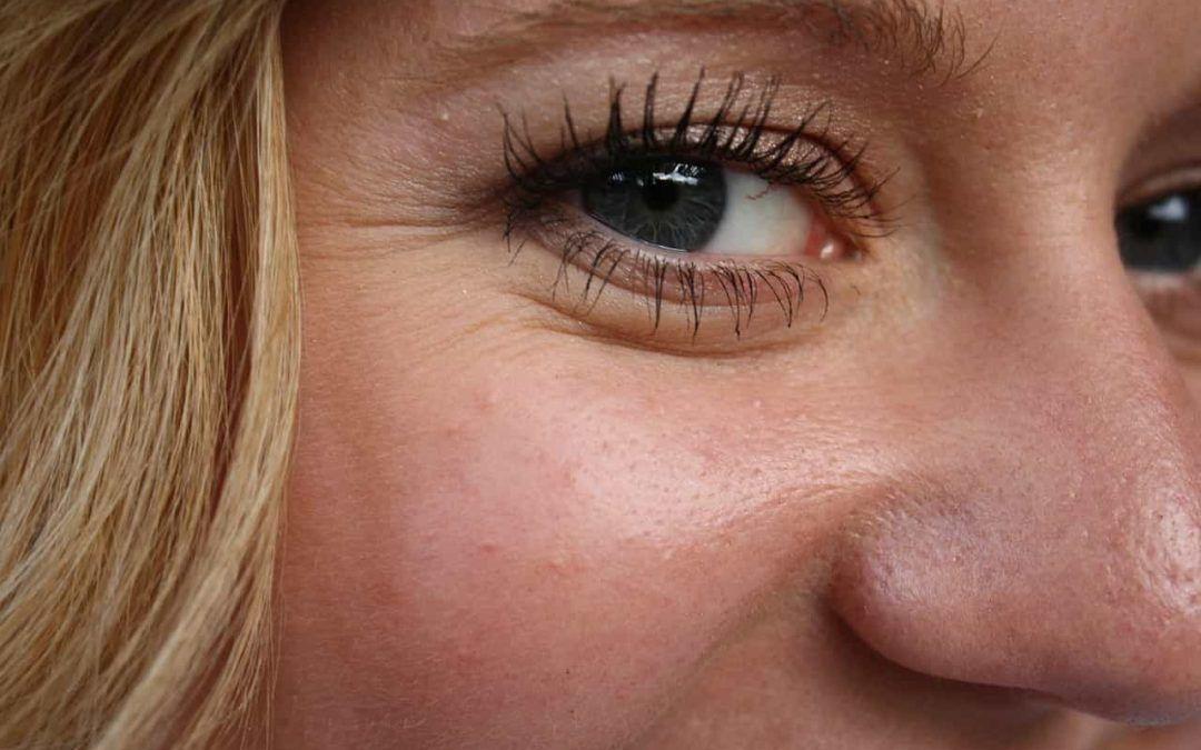 Tratamiento para las arrugas en los ojos