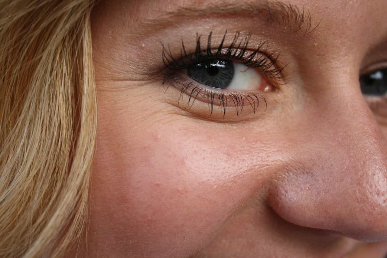 tratamiento arrugas en los ojos