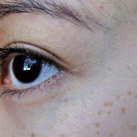 Aniridia o ausencia de iris