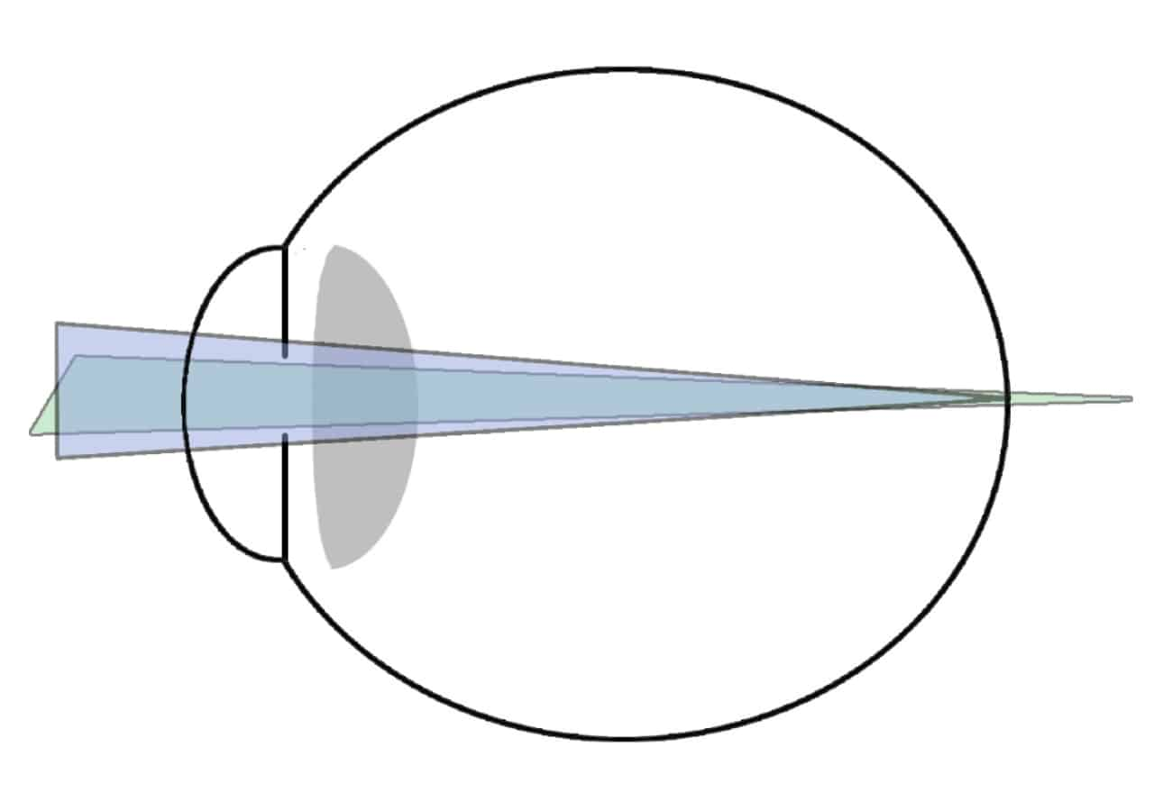 Astigmatismo hipermetropico simple
