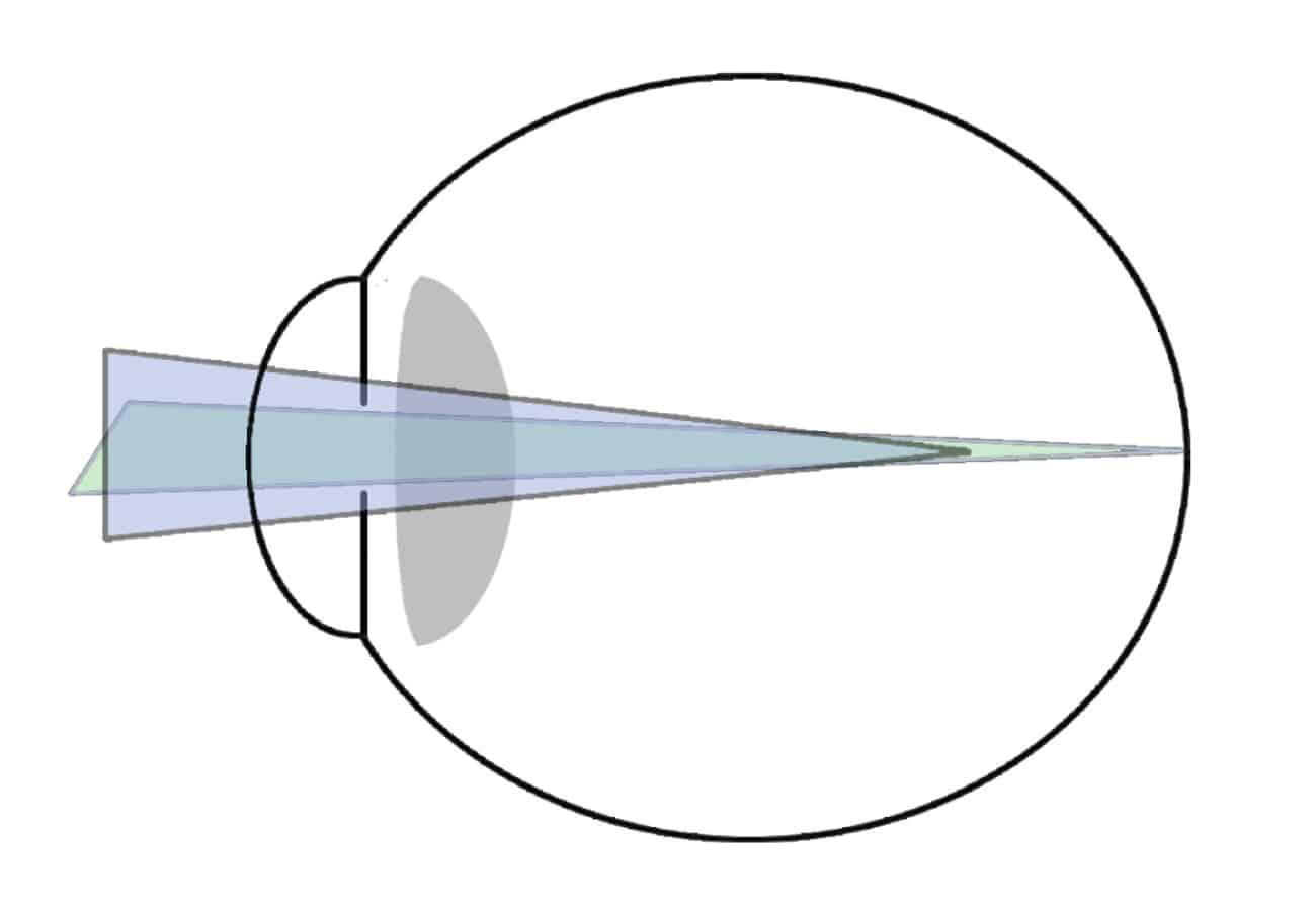 astigmatismo míope simples