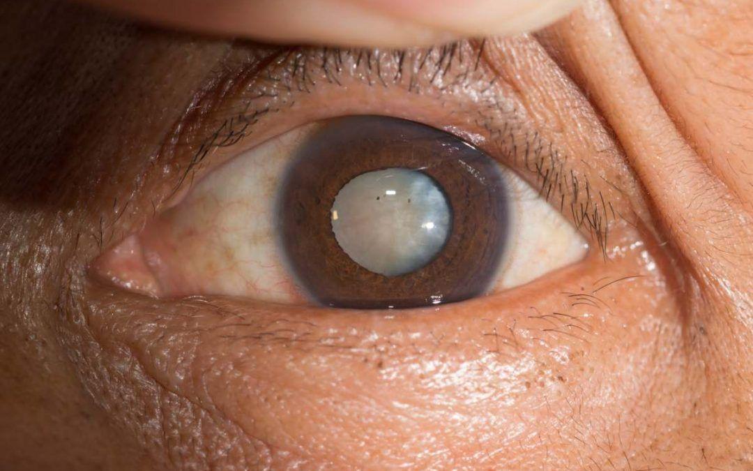 Facoesclerosis o esclerosis del cristalino, qué es, causas y tratamiento
