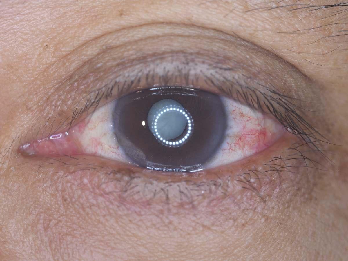 Facoesclerosis incipiente