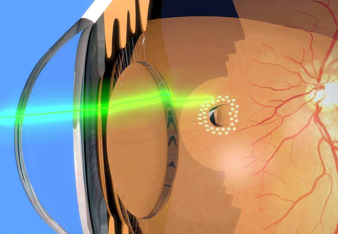 Fotocoagulación Láser