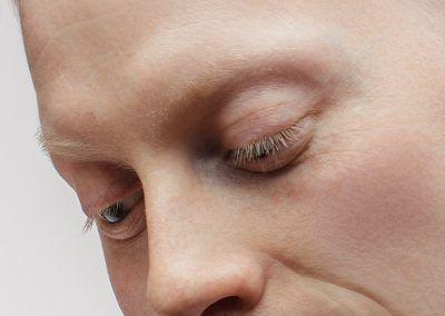 Causas do albinismo ocular