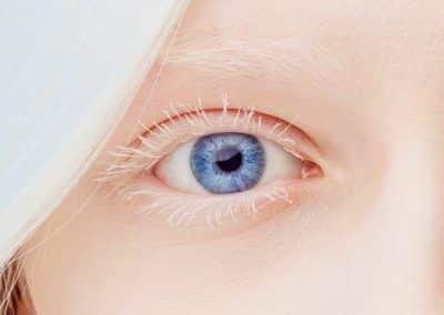 albinismo ocular ou albinismo nettleship-falls