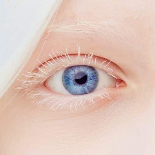 Albinismo ocular