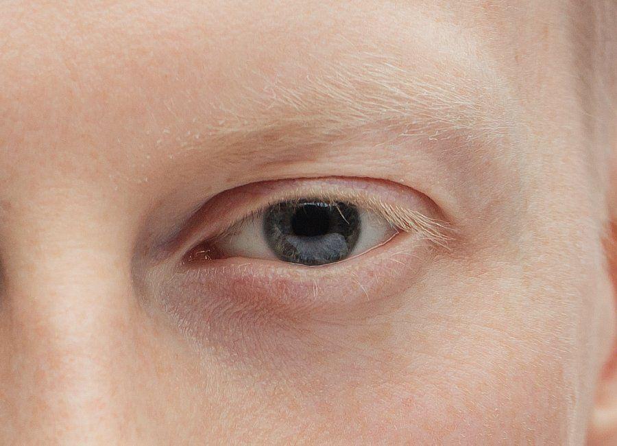sintomas de albinismo ocular