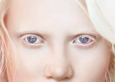 albinismo ocular tipo 1