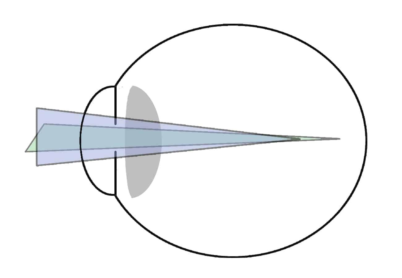 astigmatismo míope composto