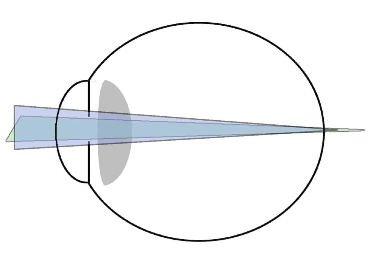 astigmatismo hipermetropico compuesto