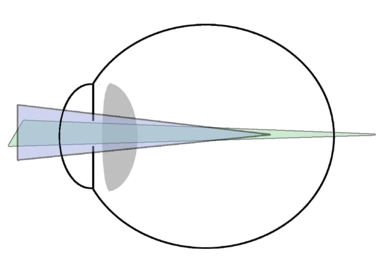 astigmatismo mixto