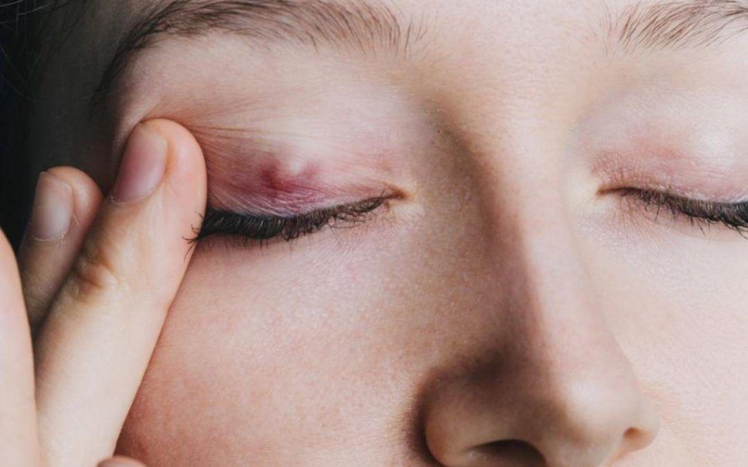 Por que tenho um caroço no olho?