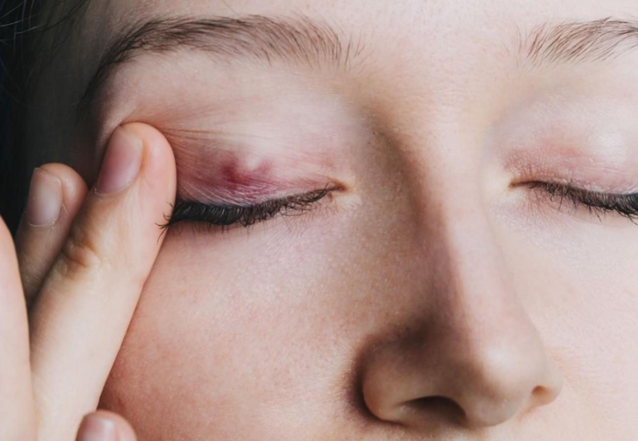 bulto en el ojo