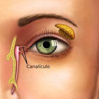 ¿Qué es la canaliculitis? Síntomas, Causas y Tratamiento