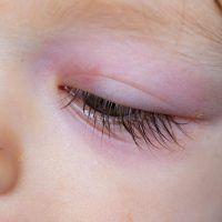 Celulitis orbitaria, qué es, causas, síntomas y tratamiento