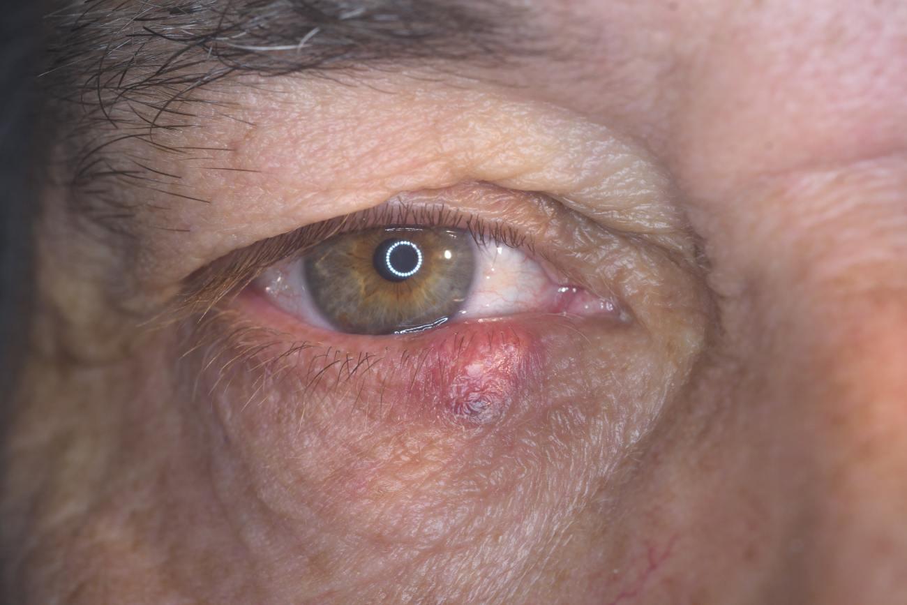 celulitis postseptal