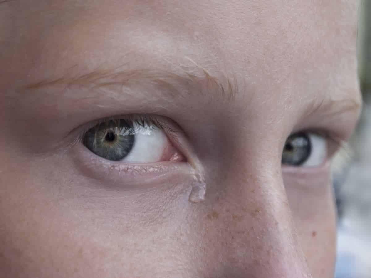 cirurgia de ducto lacrimal obstruída