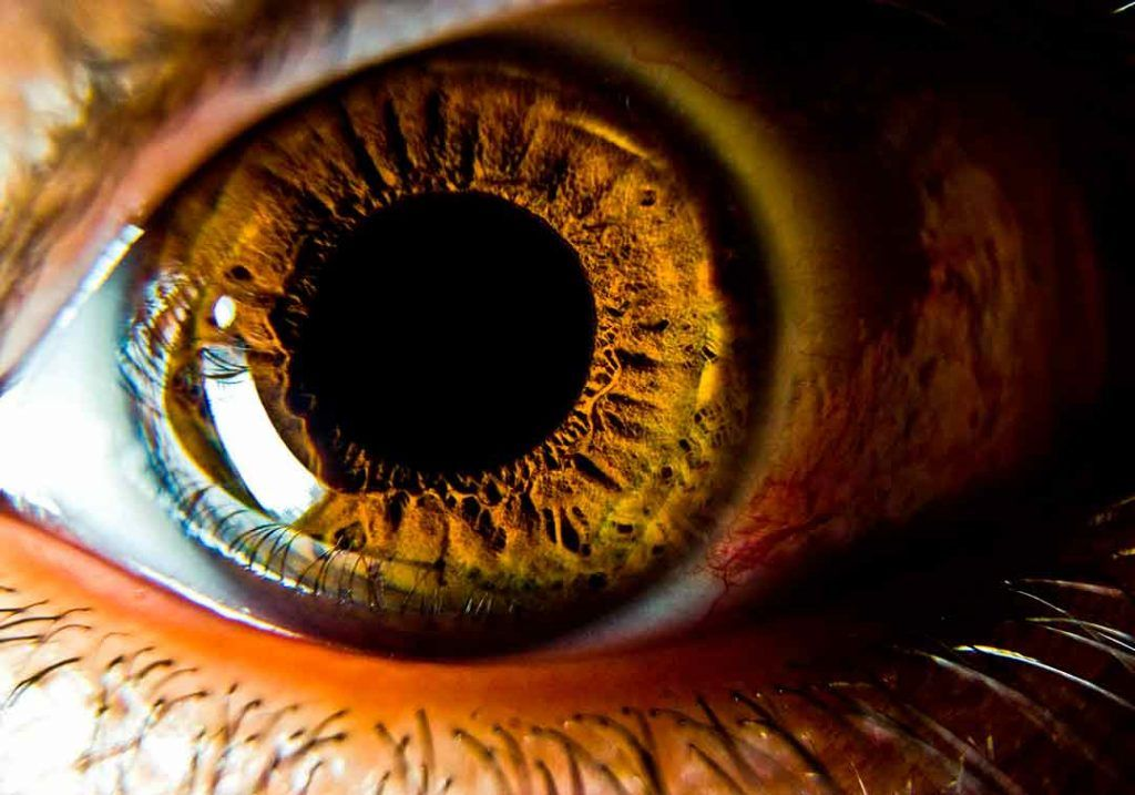 cirugia de cornea