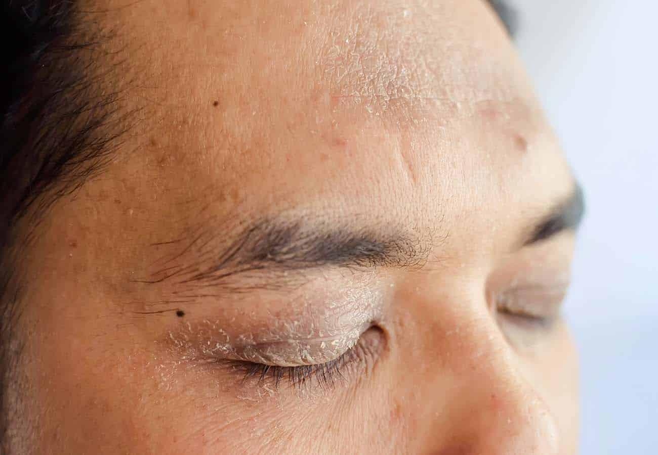 como curar dermatitis en los parpados