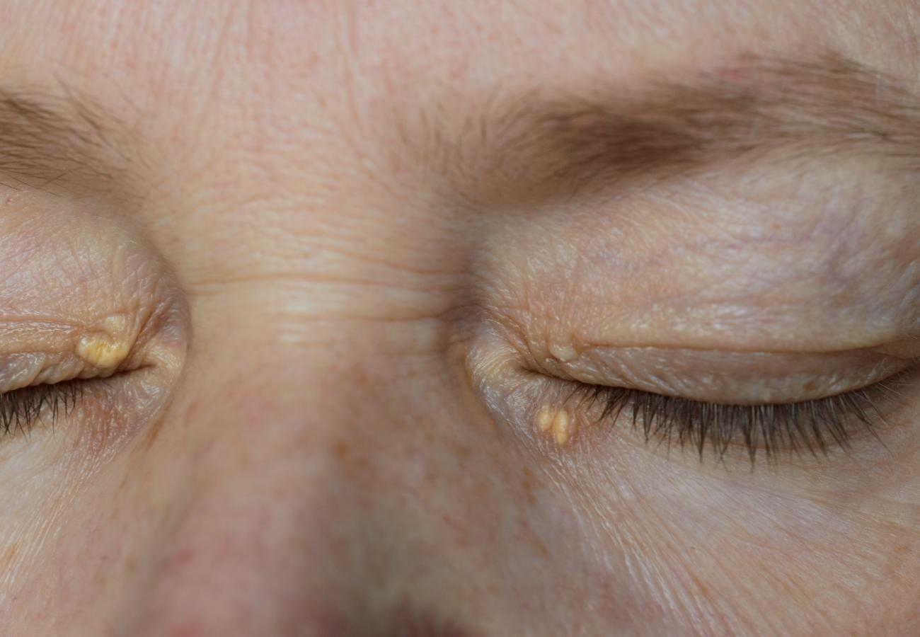 how to hide the xanthelasmas of the eyes