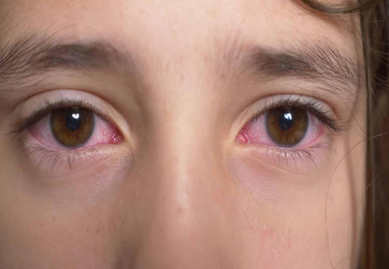 conjuntivitis alergica en niños