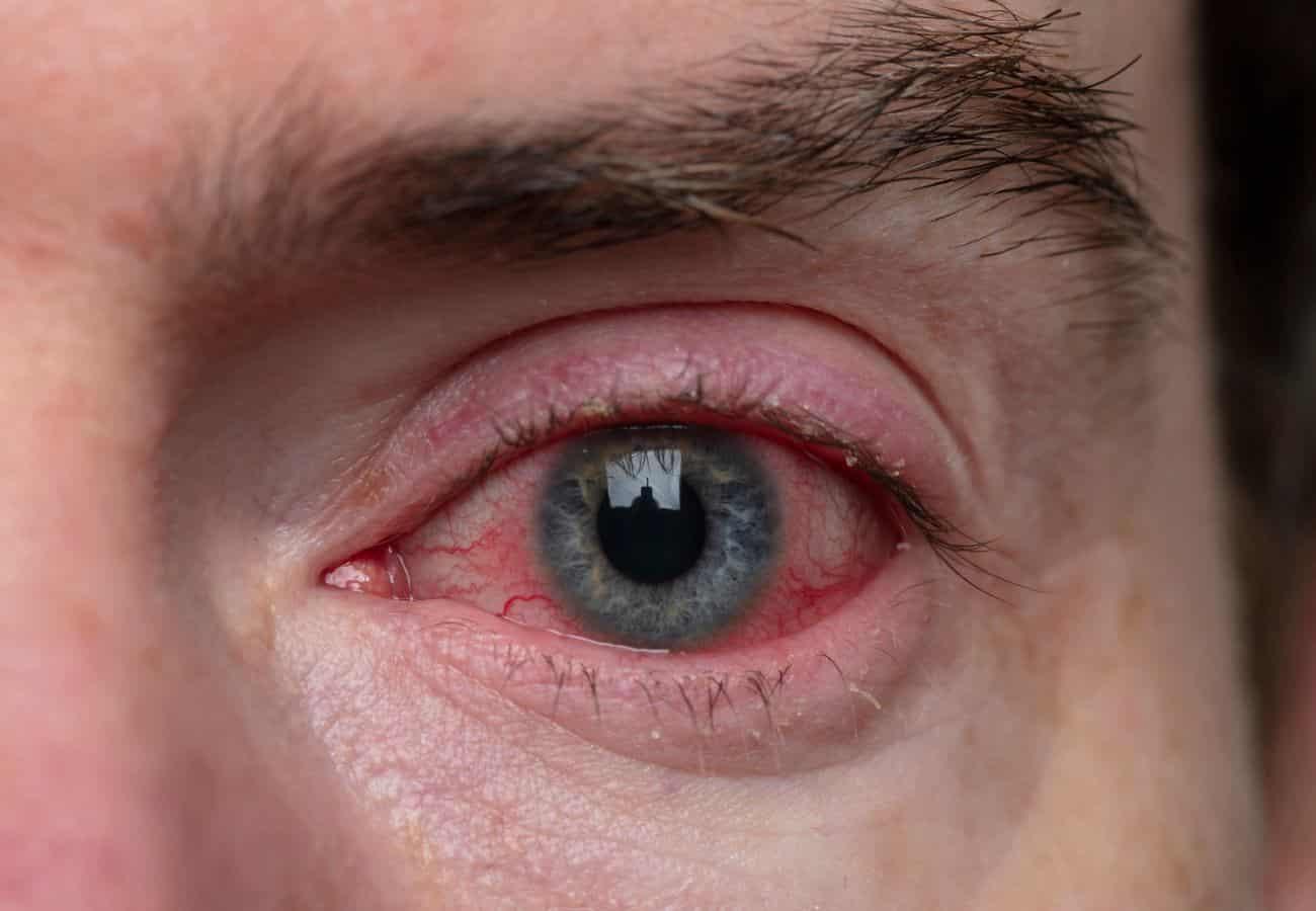 conjuntivitis alergica sintomas