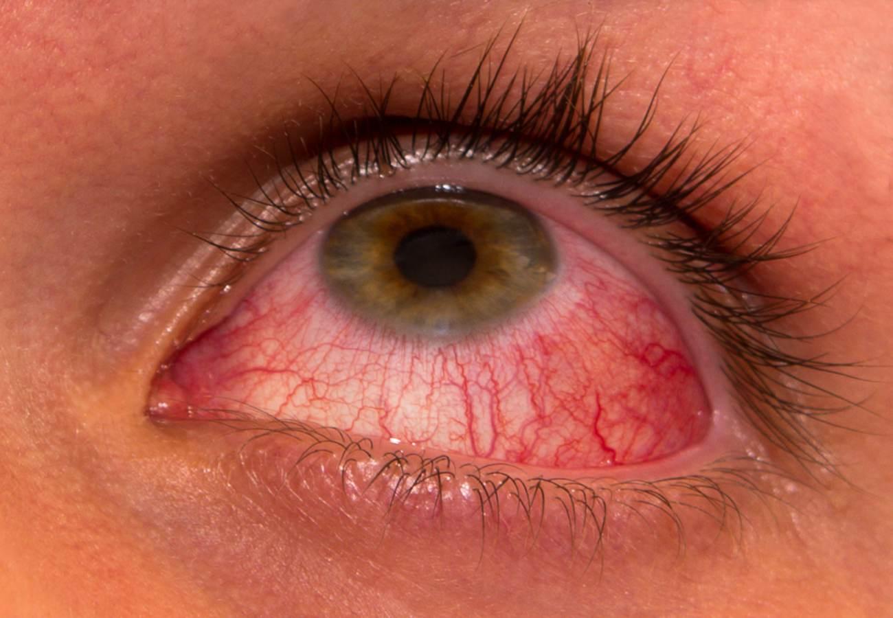 conjuntivitis alergica tratamiento