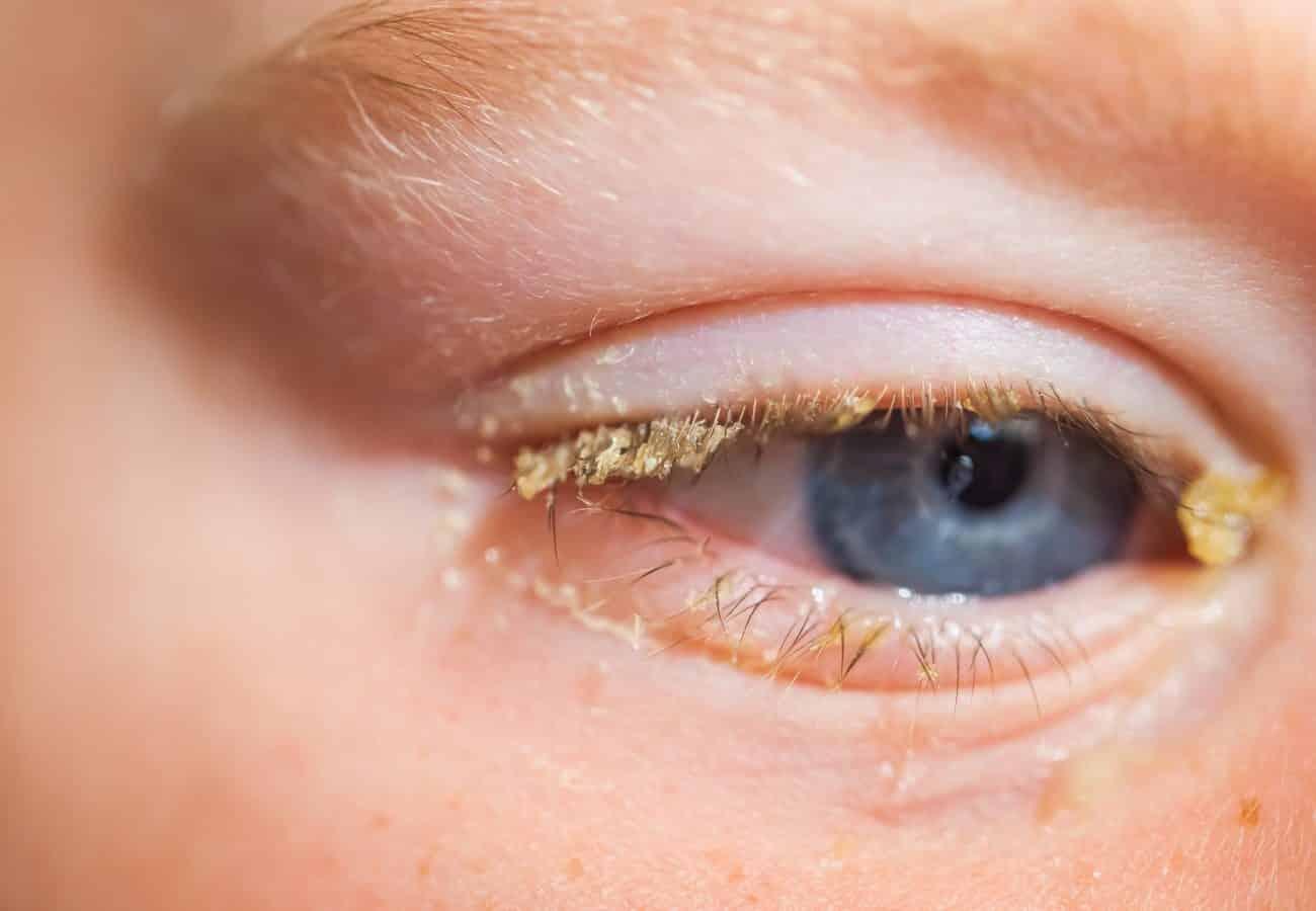 conjuntivitis bacteriana en niños