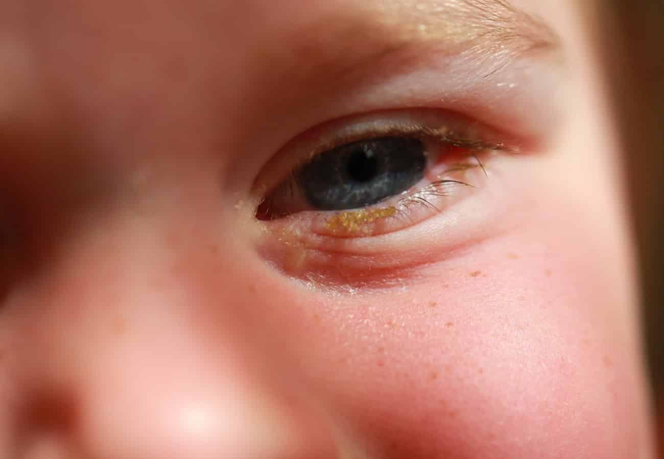 conjuntivitis bacteriana sintomas