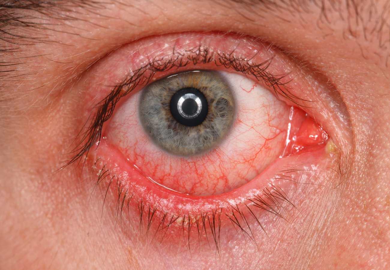 conjuntivitis cronica