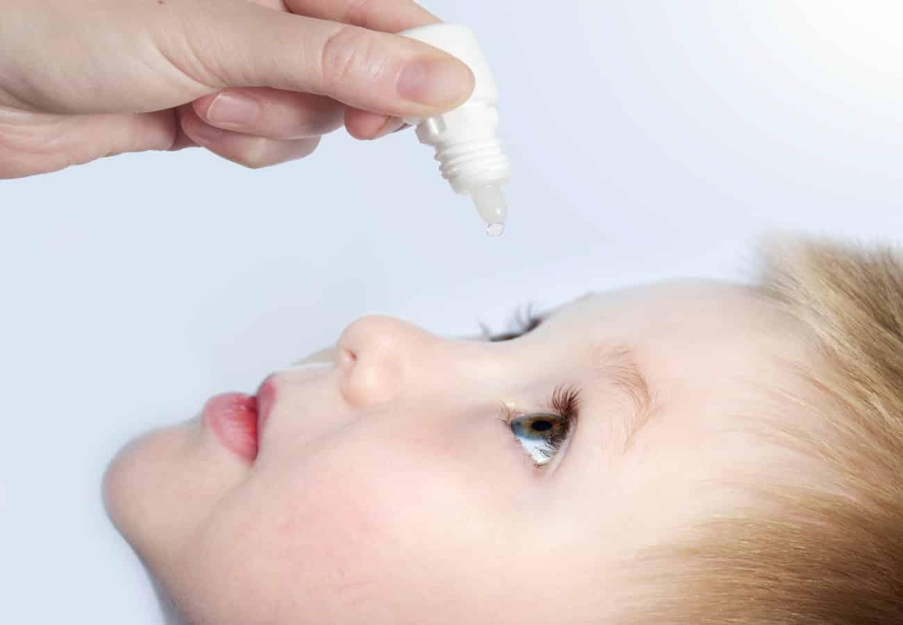 conjuntivitis niños alergia