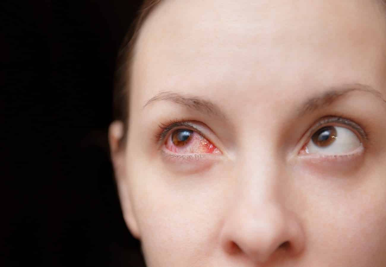conjuntivitis vernal