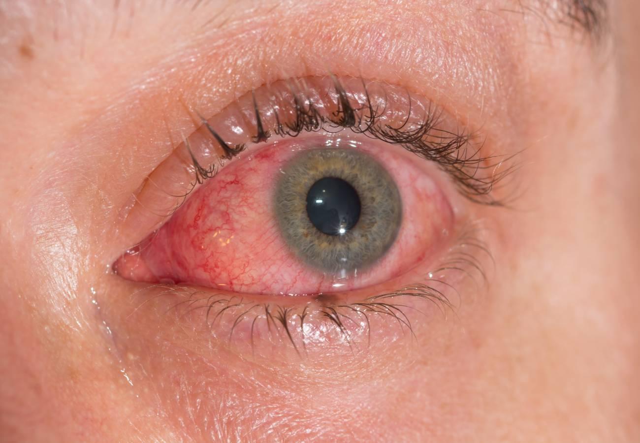 conjuntivitis virica contagio